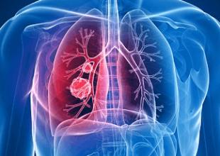 需及时做好预防这四种可能诱发肺癌的原因