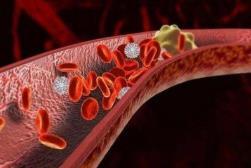 老年人预防血栓的方法
