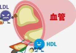 健康百科|怎么判断得了高血脂,应该怎样预防