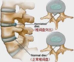 急性腰椎间盘突出如何治疗预防?