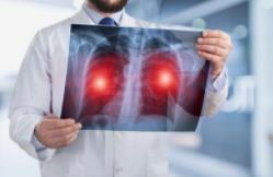 引发肺癌因素多 这些高危人群要警惕