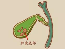 饮食习惯对胆囊的影响